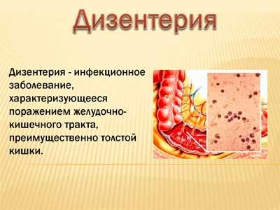 дизентерия: симптомы