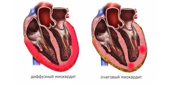 боли в сердце - миокардит