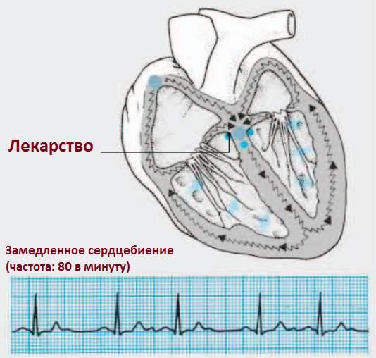 дигиталис усиливает силу сокращений сердца