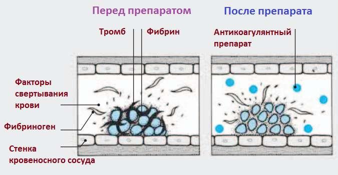 свертываемость крови антикоагулянты