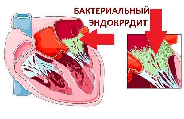 Классификация эндокардита: бактериальный эндокардит